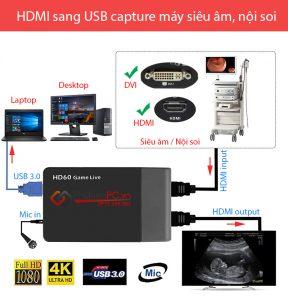 Thiết bị ghi hình HDMI sang USB capture máy siêu âm, nội soi